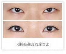 韩式双眼皮术后需要如何护理?