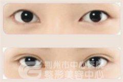 <b>韩式双眼皮需要多久才能恢复?</b>