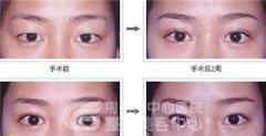 <b>割双眼皮对眼睛有伤害吗?</b>