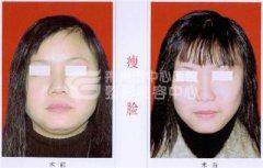 <b>瘦脸针注射一次能维持多久?</b>