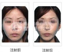 <b>注射瘦脸针需要多少时间恢复?</b>