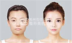 <b>注射瘦脸针有哪些危害吗?</b>
