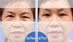 <b>提眉术都有哪些后遗症呢?</b>