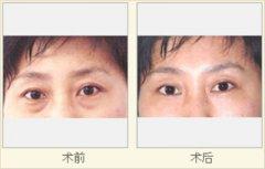 <b>手术祛眼袋和激光祛眼袋有什么不同么?</b>