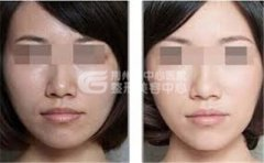 <b>荆州做黑脸娃娃需要多少钱?</b>