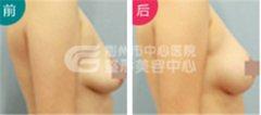 <b>荆州治疗乳房下垂要多少钱呢?</b>