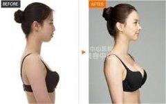 <b>自体脂肪丰胸脂肪存活率的影响因素有哪些?</b>
