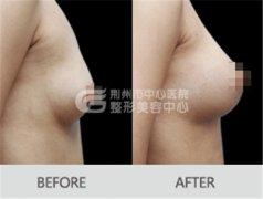 <b>自体脂肪隆胸术后要注意哪些事项?</b>