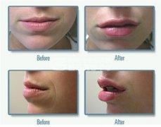 <b>注射玻尿酸进行丰唇效果怎么样?</b>