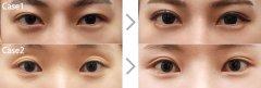 <b>荆州双眼皮修复的费用</b>