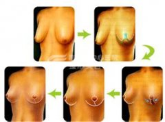<b>巨乳缩小手术是否安全?</b>