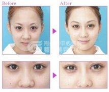<b>鼻尖成形手术后该如何护理?</b>