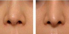 <b>鼻假体取出后要注意什么,其实你不要太担心</b>