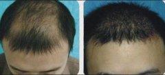 <b>哪些人不适合植发,你适合么?</b>