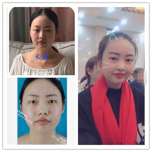 揭秘荆州医院真人割双眼皮开眼角手术三个月恢复效果图