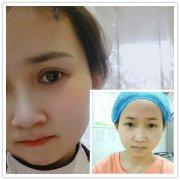 分享荆州全切双眼皮恢复过程及三个月对比图