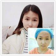 【荆州双眼皮】分享护士做切开双眼皮40天恢复全过程