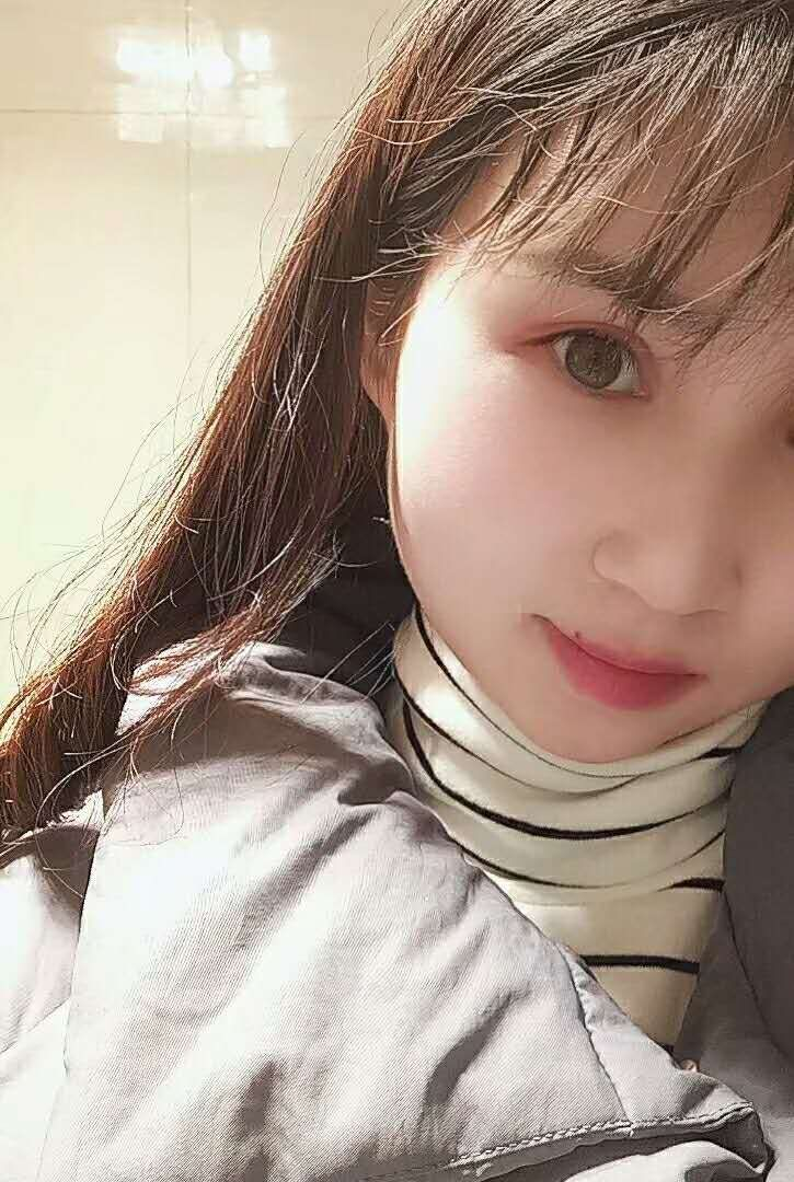 【真人案例】在荆州医院做双眼皮一百天效果对比图