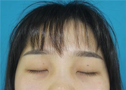【整形日记】揭秘荆州医院董洁做双眼皮、开眼角手术过程